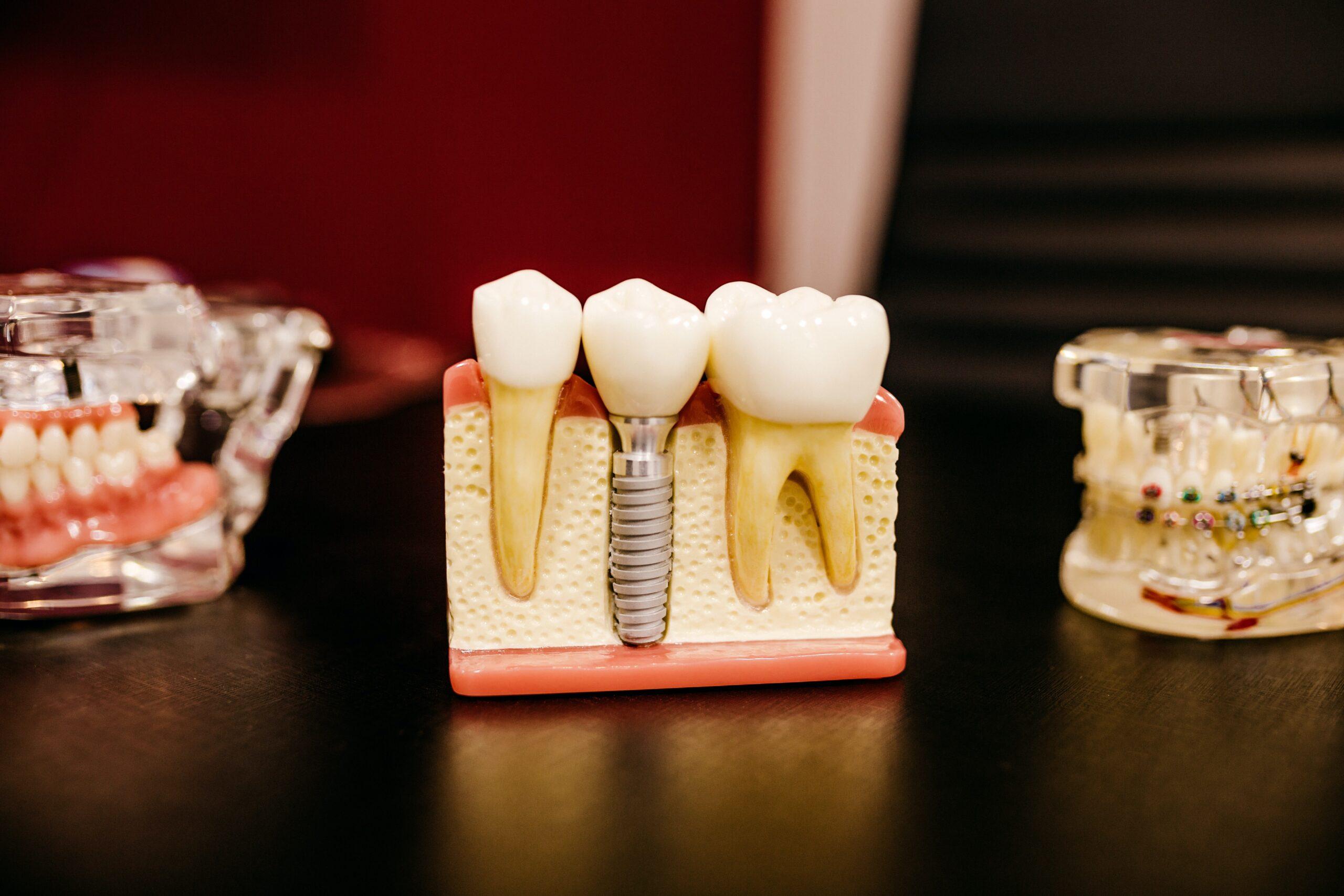 Hvad er forskellen på en tandlæge og tandtekniker?